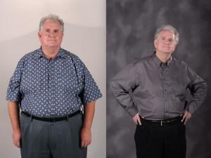 Four months after surgery